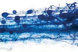 Endopmykorrhiza